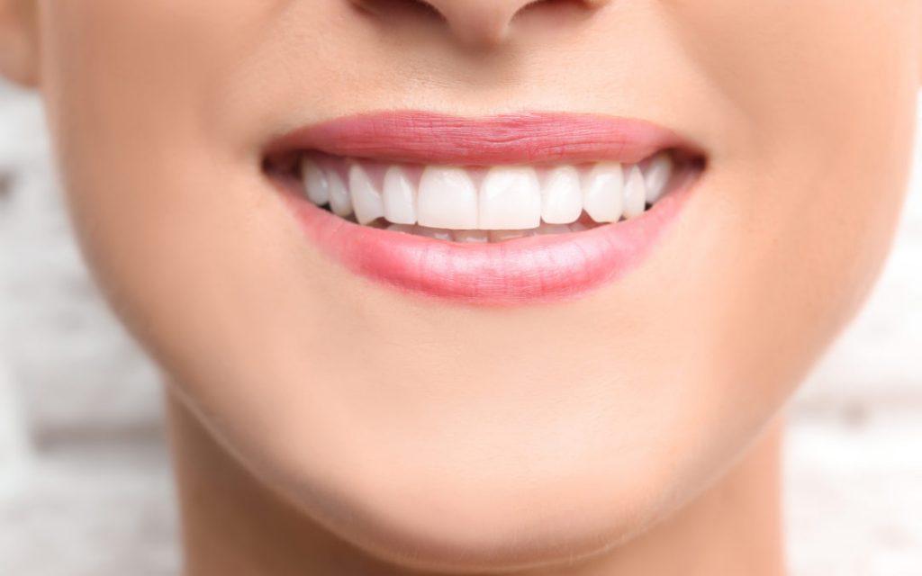 headway of teeth